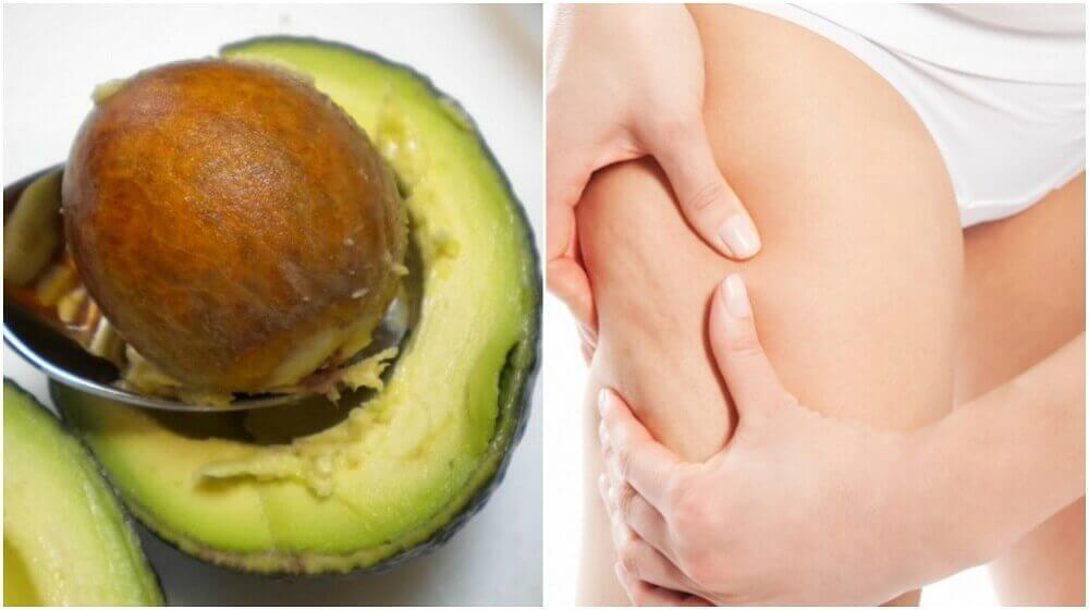 Як використовувати насіння авокадо проти целюліту
