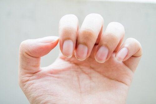 лікування тріснутих нігтів