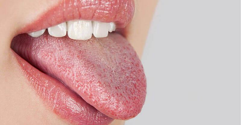 сухість у роті та відчуття спраги - симптоми діабету