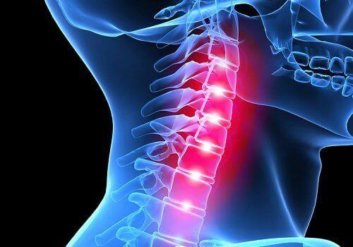 Біль у верхньому шийному відділі хребта