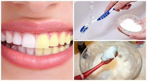 Натуральні продукти для відбілювання зубів – Моє здоров я 49feb81907341