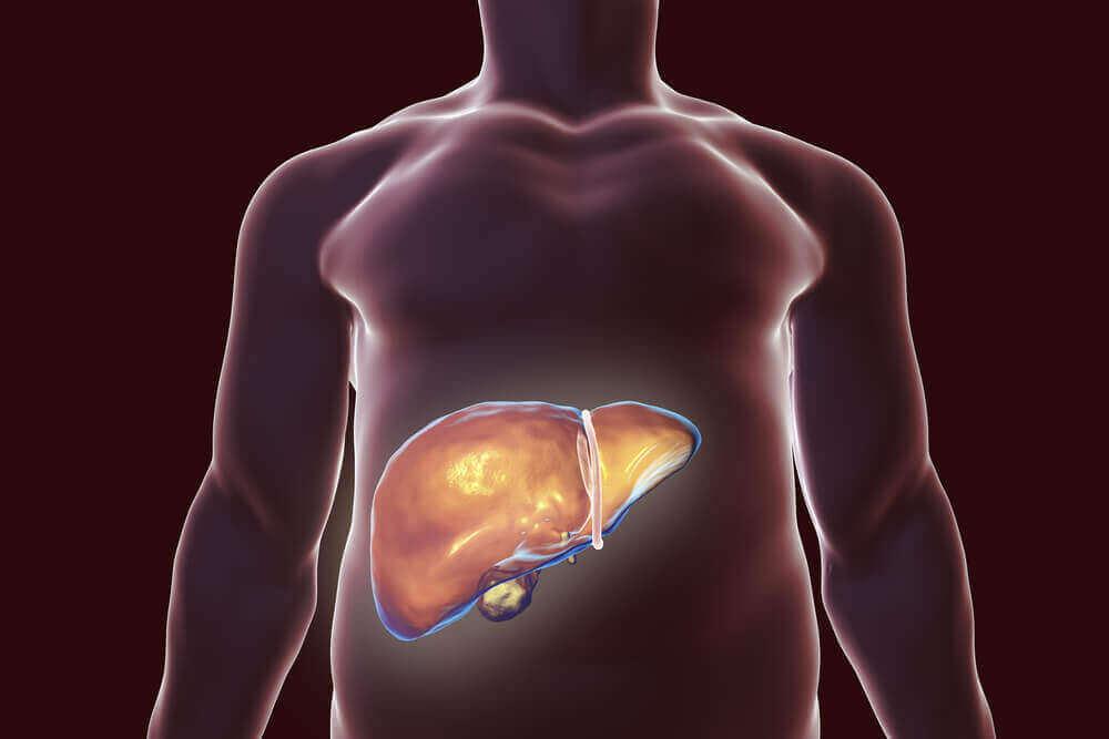 Найкращі природні засоби для детоксикації печінки