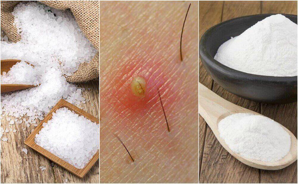 5 натуральних засобів від врослого волосся