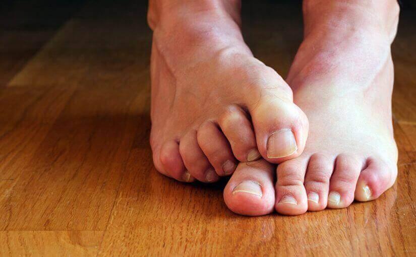 ефективне усунення грибка нігтів