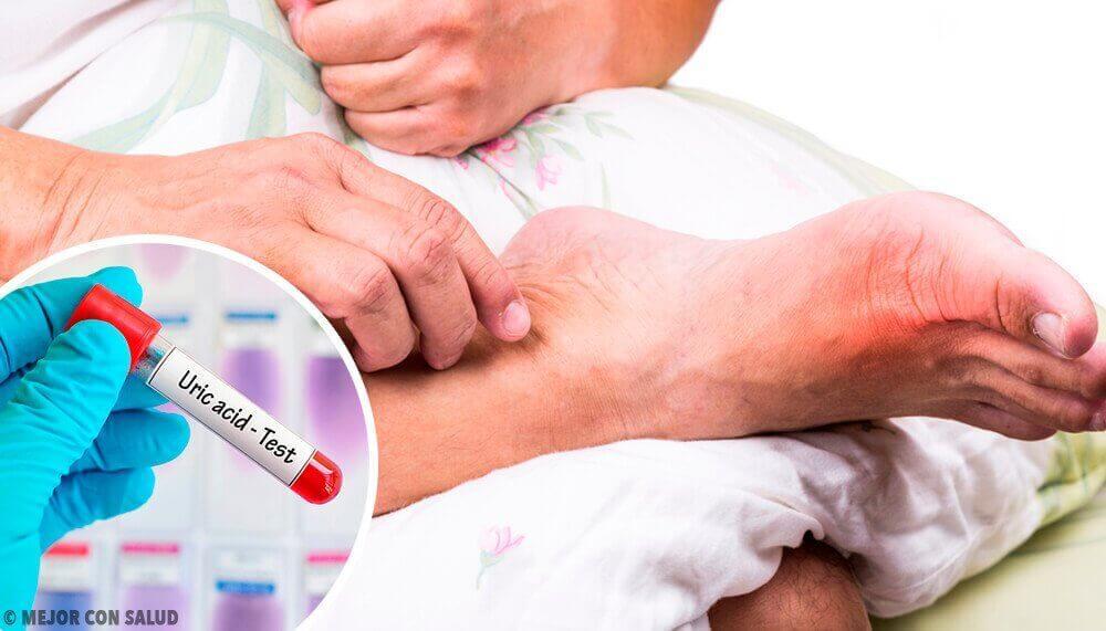 5 причин надлишку сечової кислоти в організмі