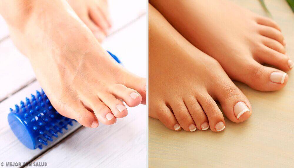 Як усунути ґулі на ступнях без хірургічного втручання