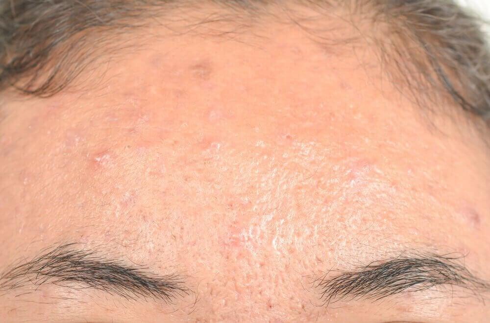 Як лікувати себорейний дерматит за допомогою натуральних засобів