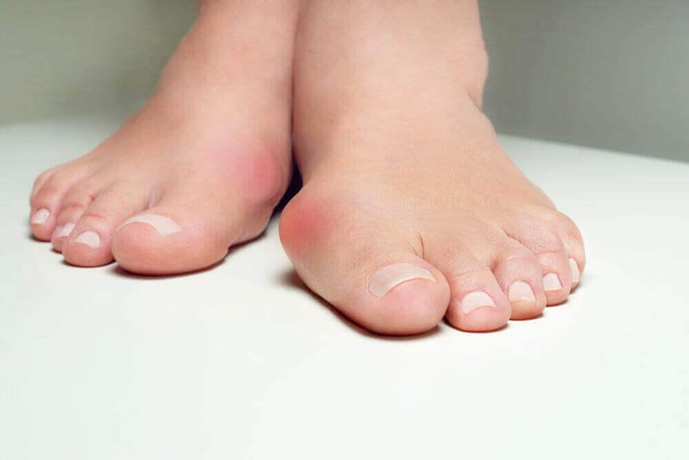 Вальгусна деформація великого пальця стопи: 5 трав'яних ліків