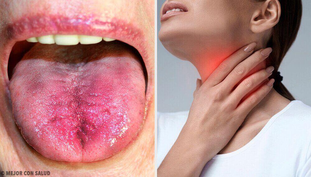 6 способів дізнатися про наліт у горлі
