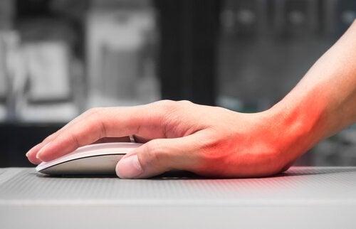 Синдром зап'ястного каналу рук