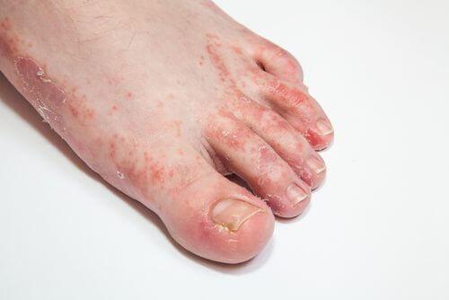 15 засобів, щоб вилікувати грибок шкіри