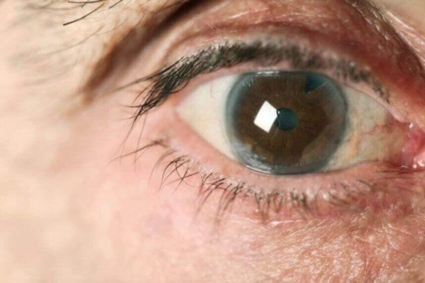 як лікувати глаукому