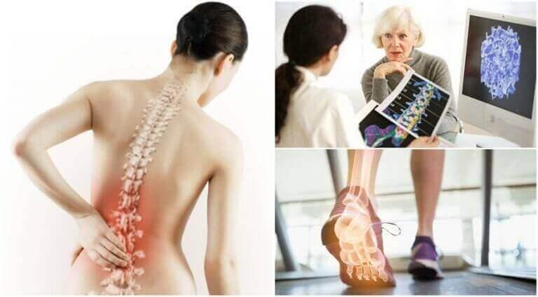 остеопороз викликає біль у спині
