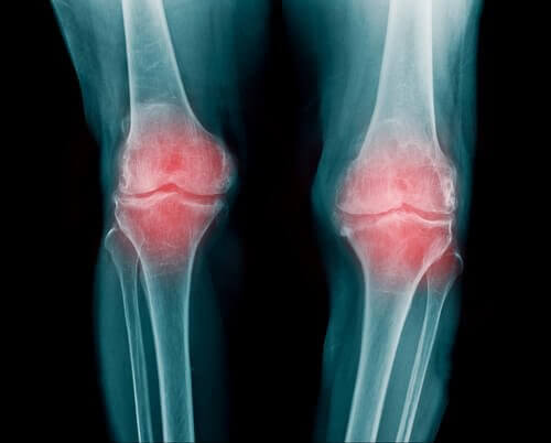 ревматоїдний артрит призводить до поколювання у кінцівках