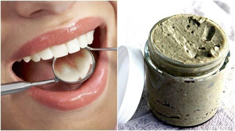 Натуральні засоби для профілактики та лікування карієсу