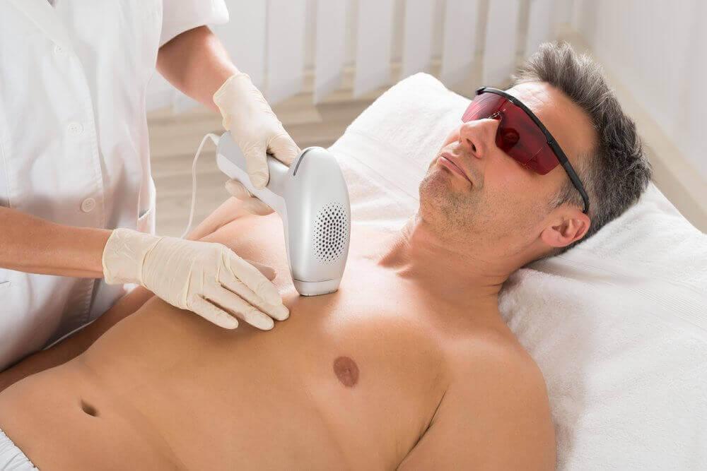 Лазерна епіляція викликає рак шкіри