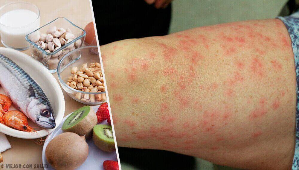 Дізнайтеся про найпоширеніші алергії на харчові продукти та як з цим боротися