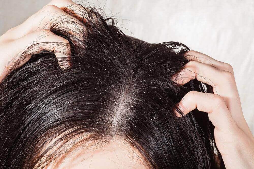 6 найкращих засобів для лікування грибка шкіри голови