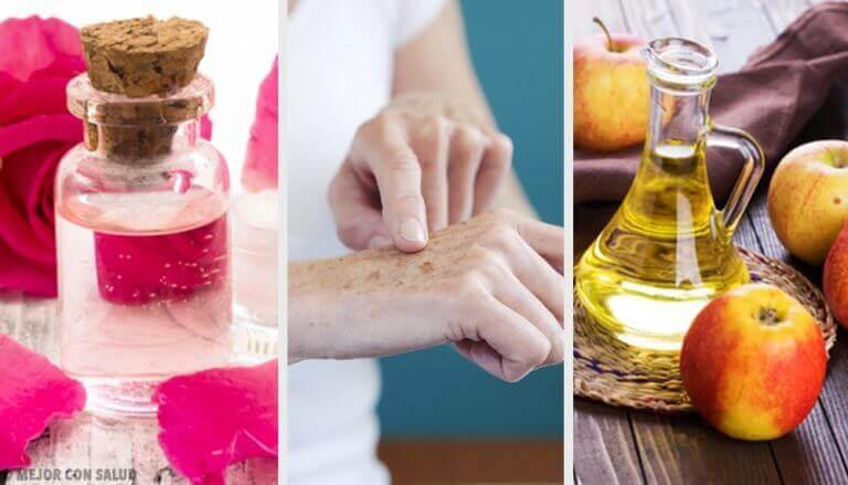 8 натуральних способів позбутися темних плям на руках