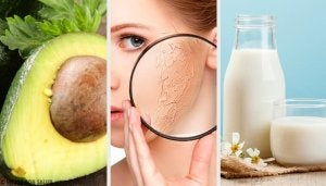 10 найкращих домашніх засобів для зволоження сухої шкіри