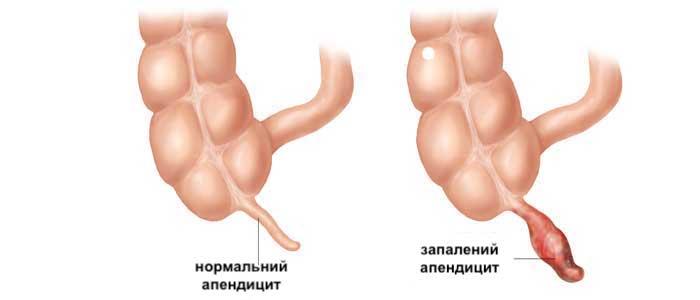 чому виникає апендицит у дітей