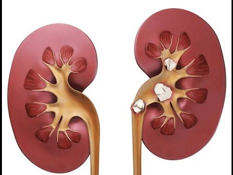 камені у нирках