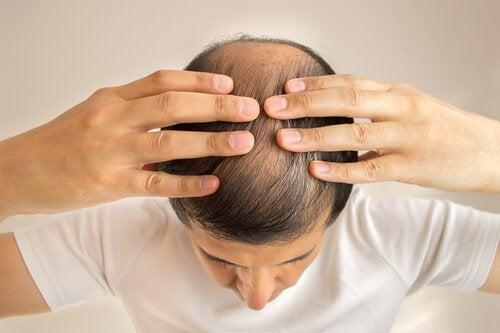 що викликає втрату волосся