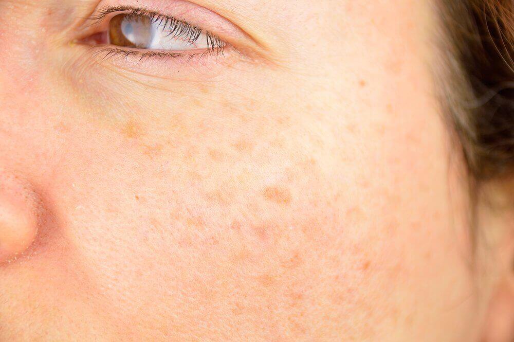 чому корисне вмивання обличчя яблучним оцтом