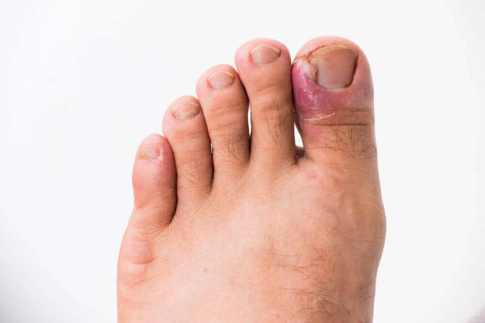 методи профілактики вростання нігтів