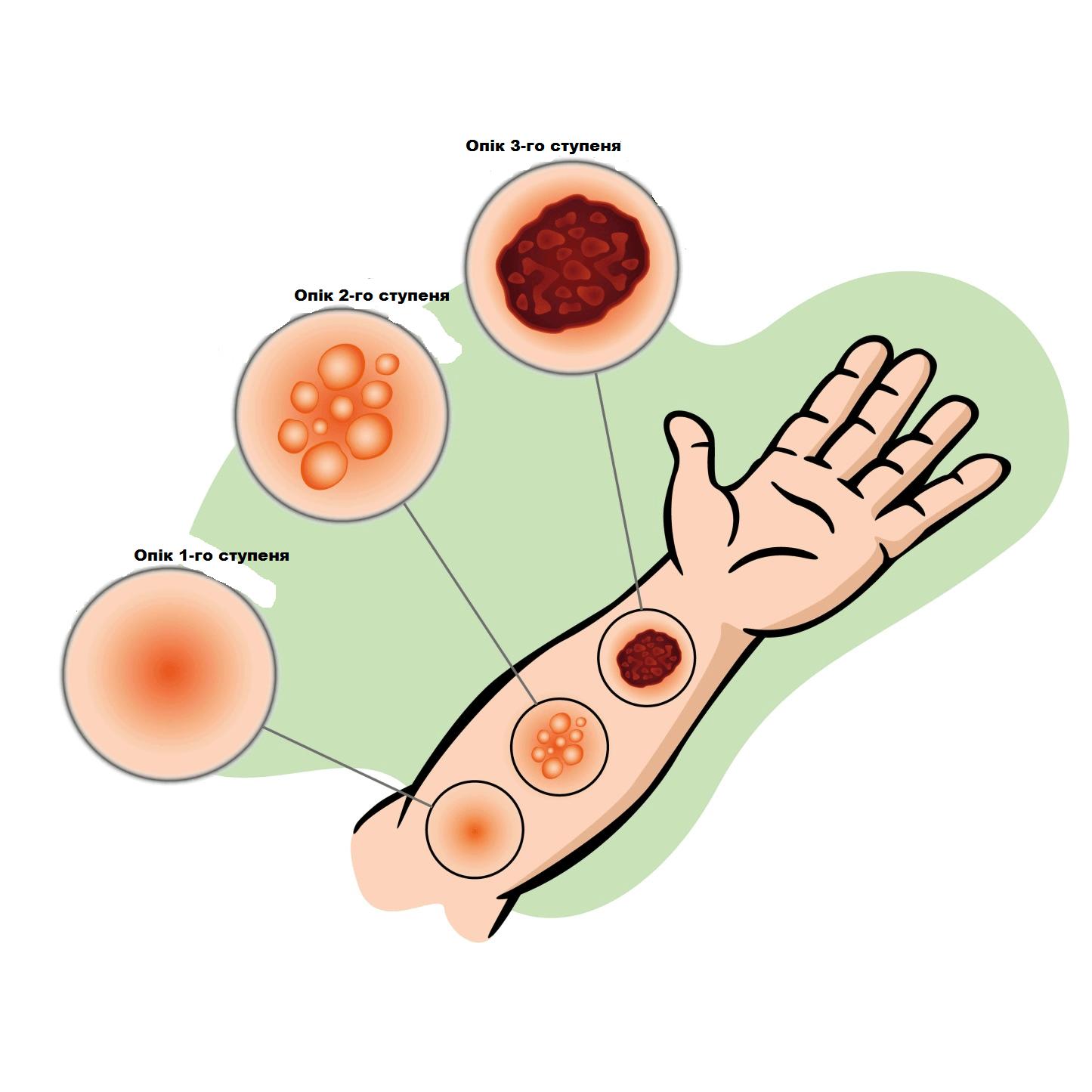 Харчова сода для лікування опіків