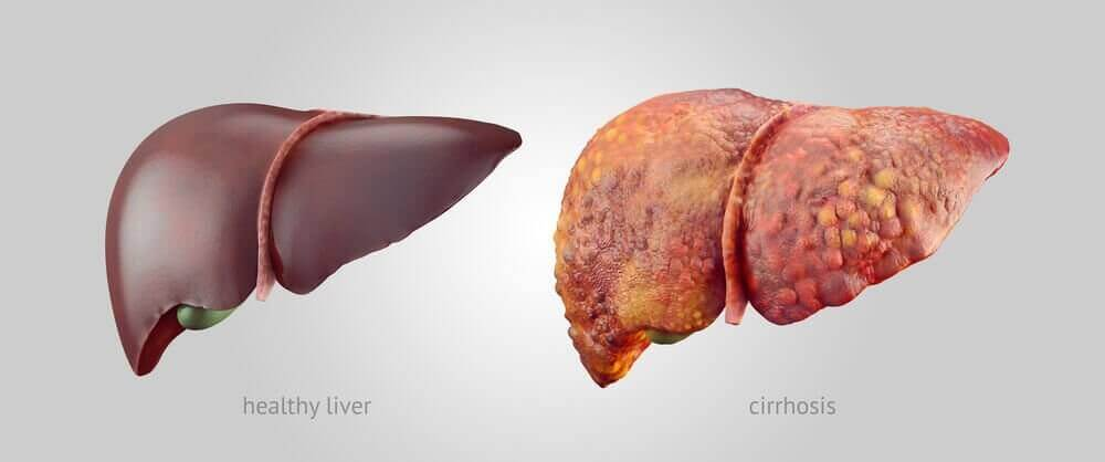 3 корисні поради, якщо у вас цироз печінки