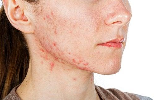 6 натуральних засобів для лікування акне