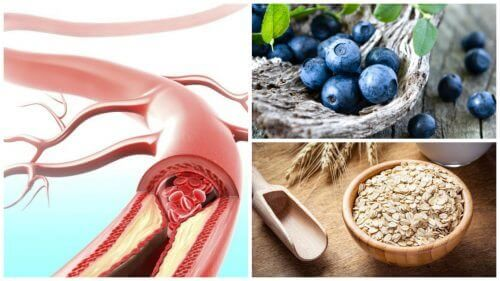 Продукти для зміцнення стінок артерій