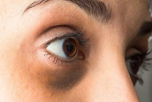 Як освітлити ефірними оліями темні кола під очима