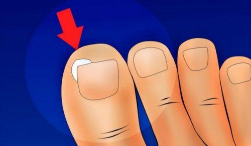 Ефективні методи профілактики вростання нігтів