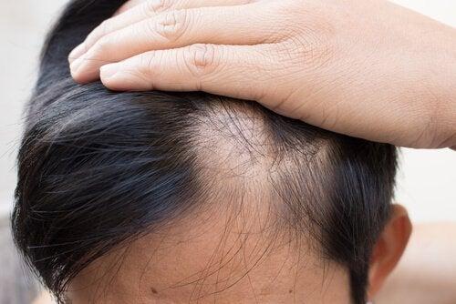 натуральні методи лікування алопеції