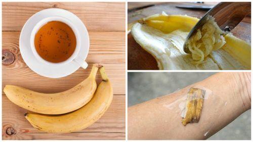 5 способів використання бананових шкірок