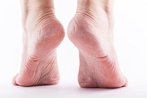 мозолі на ногах
