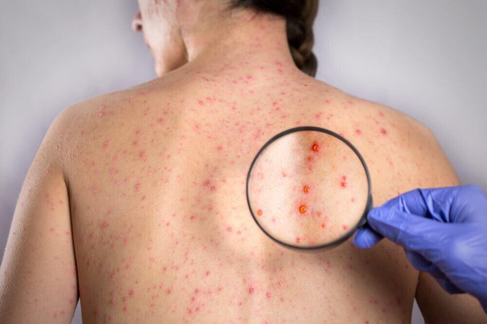 герпес на спині: засоби лікування