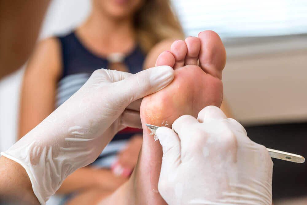 Найкращі способи, щоб видалити мозолі на ногах