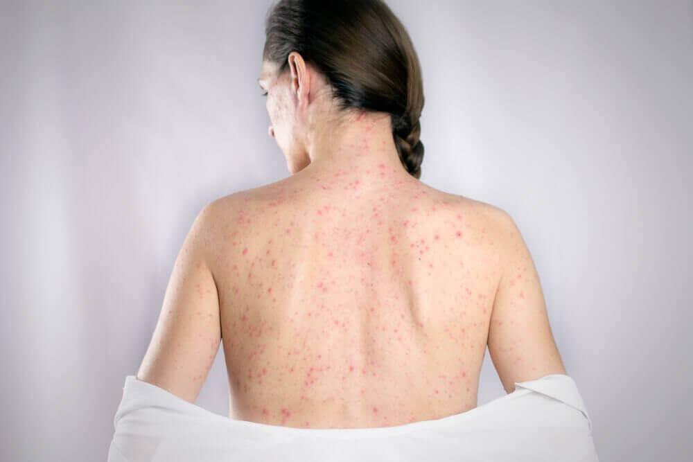 Герпес на спині: 5 натуральних засобів для лікування