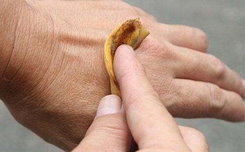 використання бананових шкірок від бородавок
