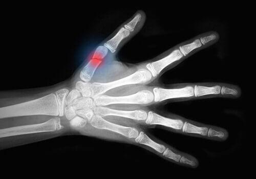 остеопороз та переломи