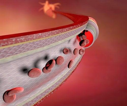 набрякання гомілок свідчить про слабкі кровоносні судини