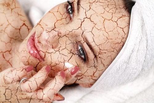 Як зменшити сухість шкіри обличчя