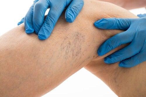 8 порад для лікування варикозного розширення вен