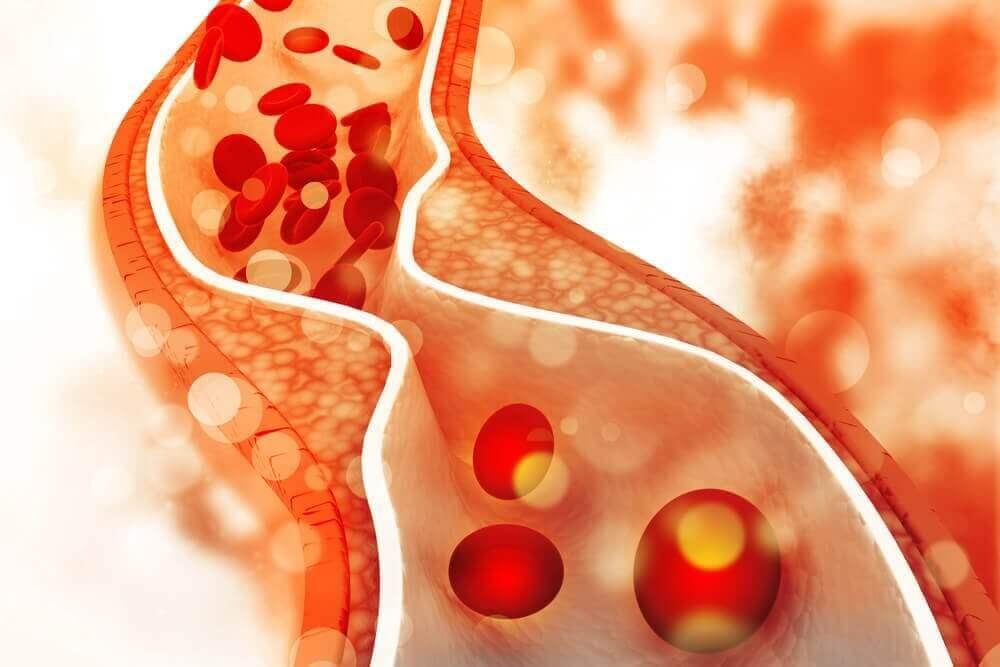 симптоми високого рівня холестерину