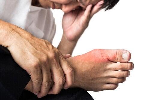 лікування подагри на нозі