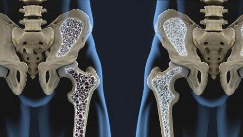 Як змінити харчування для профілактики остеопорозу