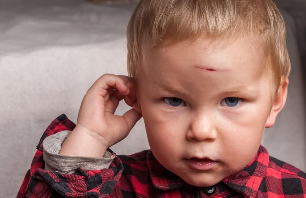 коли дитина порізалася